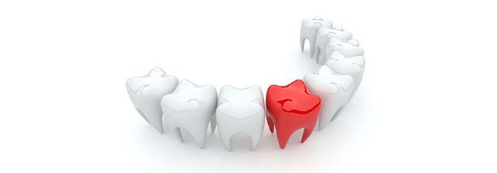 odontoiatria conservativa roma centro