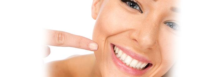 sbiancamento denti roma centro